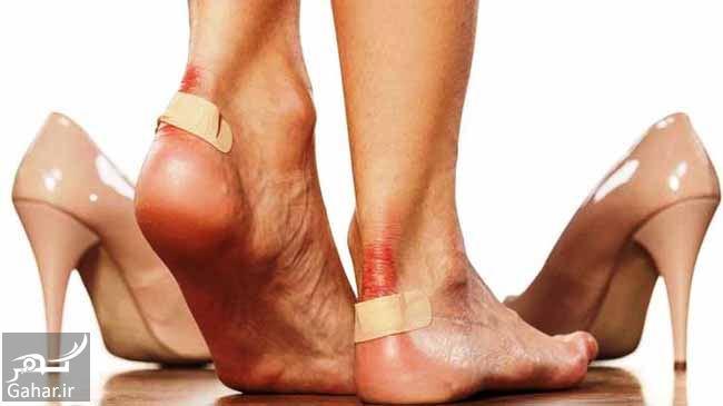 درمان تاول پا, جدید 1400 -گهر