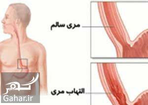 علایم زخم مری را بشناسید, جدید 1400 -گهر