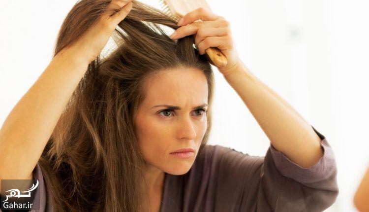 درمان ریزش مو شدید, جدید 1400 -گهر