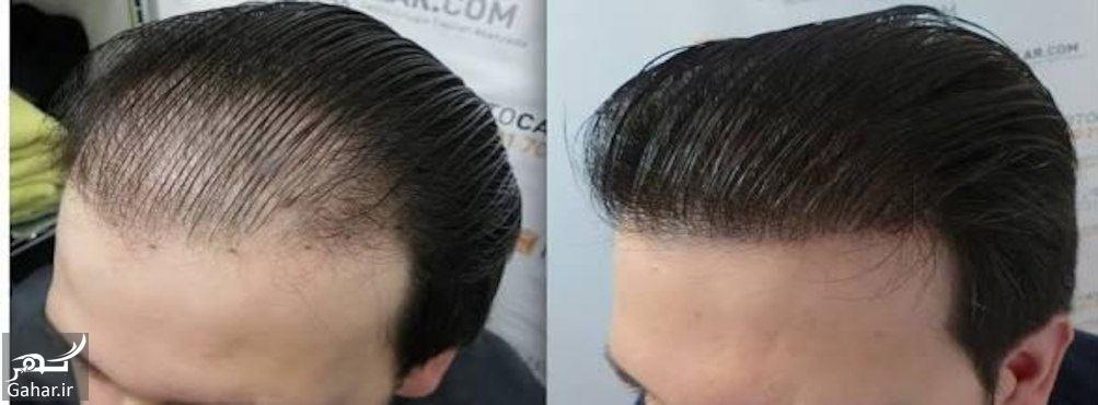 ناگفته هایی درباره کاشت مو در کلینیک های کاشت مو, جدید 1400 -گهر