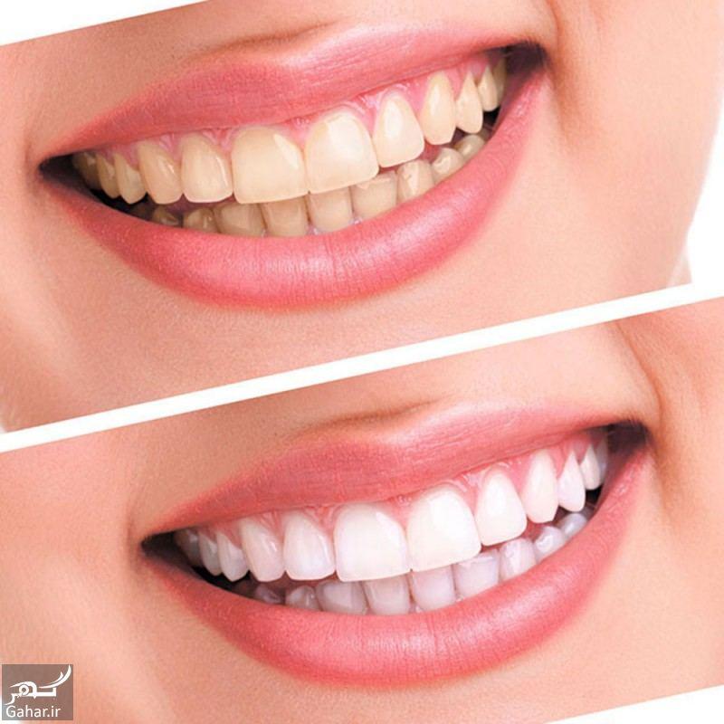 هزینه بلیچینگ دندان ۱۴۰۰ + بلیچینگ چیست؟, جدید 1400 -گهر