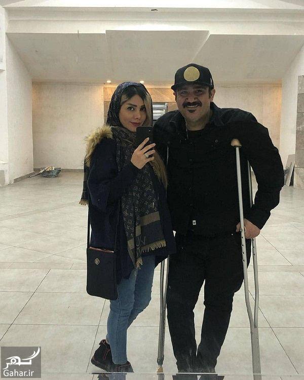 عکس آینه ای مهران غفوریان و همسرش بعد از عمل, جدید 1400 -گهر