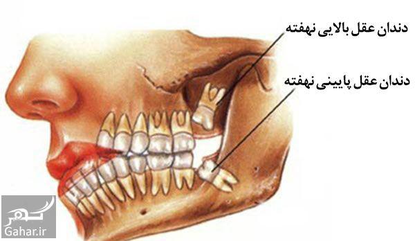 131234 Gahar ir هزینه جراحی دندان عقل