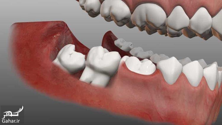 419981 Gahar ir هزینه جراحی دندان عقل