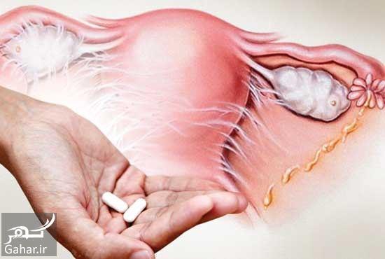 525210 Gahar ir درمان درد زیر شکم در زنان
