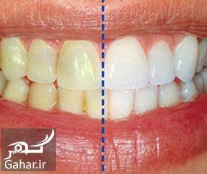 هزینه جرم گیری دندان در سال ۹۸, جدید 1400 -گهر