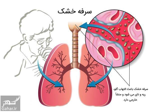 597791 Gahar ir درمان سریع سرفه خشک