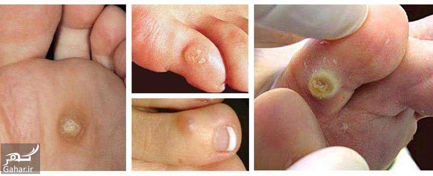 076666 Gahar ir درمان میخچه دست