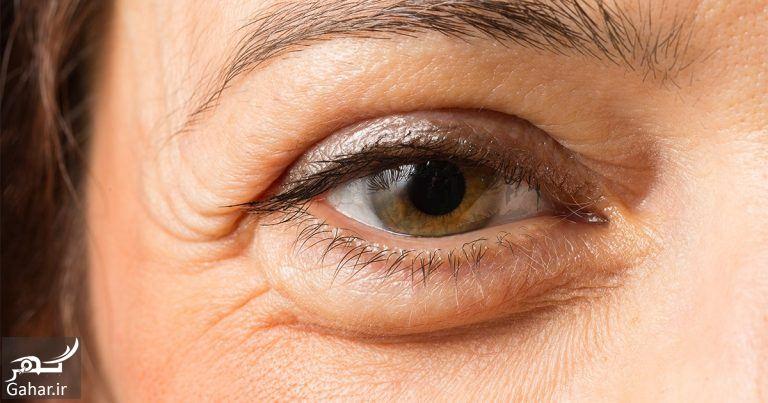 411123 Gahar ir درمان پف بالای چشم