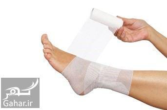 درمان رگ به رگ شدن پا, جدید 1400 -گهر