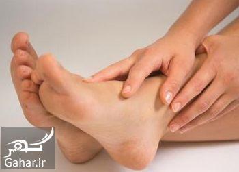 درمان داغی کف پا در تابستان و دیگر فصل ها, جدید 1400 -گهر