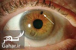 899994 Gahar ir آب سیاه چشم و درمان آن