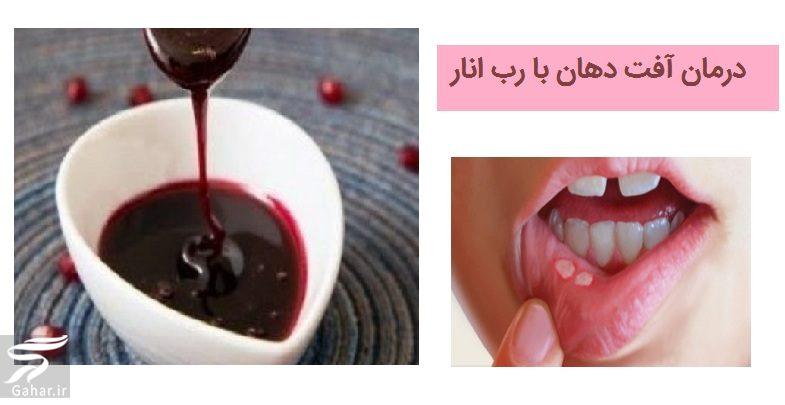 درمان آفت دهان با رب انار, جدید 1400 -گهر