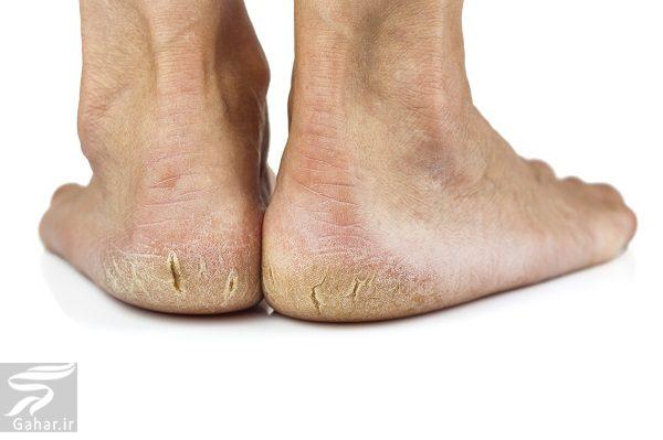 760352 Gahar ir چگونه مي توان خشکي و ترک کف پا را برطرف کرد؟