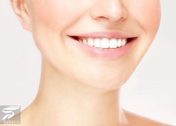 585689 Gahar ir روشهای معجزه آسا و خانگی برای سفید کردن دندانها