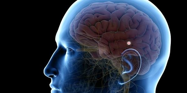 بررسی علائم و درمان بیماری های رایج مغزی, جدید 1400 -گهر