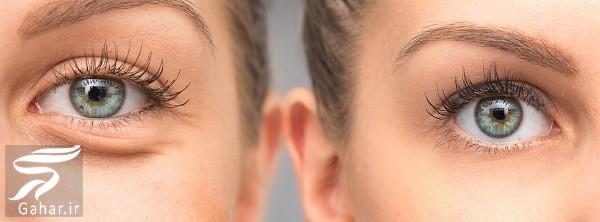 هزینه فیلر زیر چشم / هزینه تزریق ژل زیر چشم چقدر می شود؟, جدید 1400 -گهر