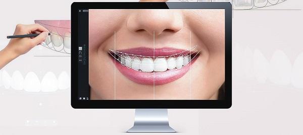 بهترین خدمات دندانپزشکی برای اصلاح طرح لبخند چیست ؟, جدید 1400 -گهر