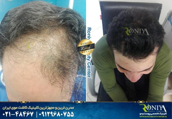 کاشت مو به روش ترکیبی چگونه است ؟, جدید 1400 -گهر