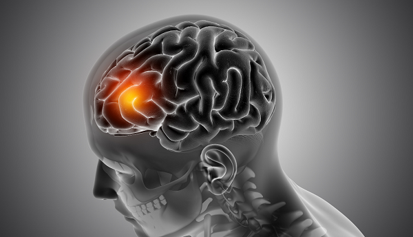 علائم و روش های درمان تومور مغزی مننژیوم, جدید 1400 -گهر