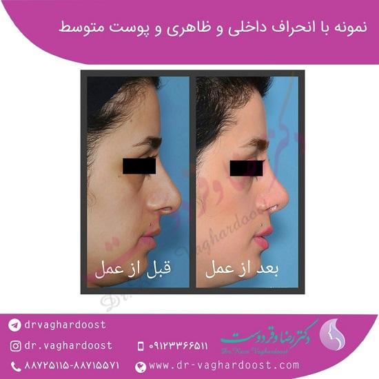 1545680365 بهترین جراح بینی در تهران