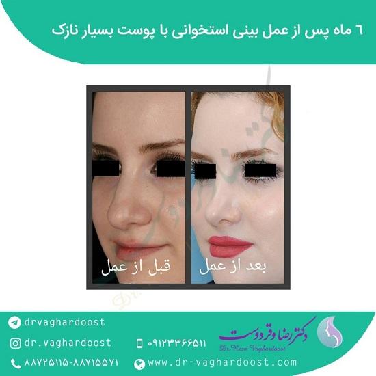 1545709405 بهترین جراح بینی در تهران