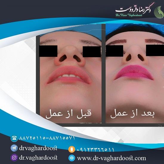 1545711442 بهترین جراح بینی در تهران