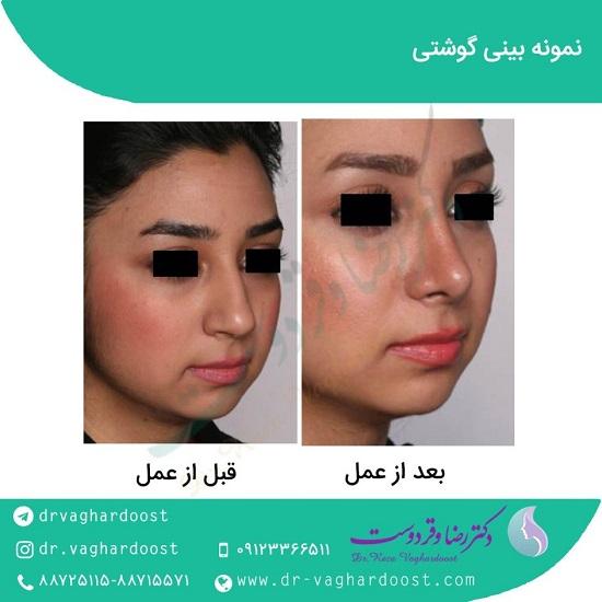 1545726413 بهترین جراح بینی در تهران